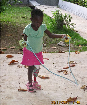 A girl with a prosthetic leg learning to skip